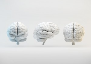 The human brain from different angles